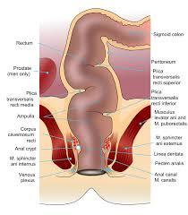 نزيف المستقيم: ماهيته، أسبابه والأعراض المصاحبة لنزيف المستقيم ...