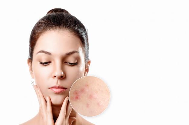 face bacteria